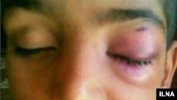 عکس منتشر شده از دانش آموزی که در مدرسه ای در بمپور توسط معلم مورد ضرب و شتم قرار گرفته است.