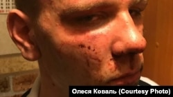 Фотографии Вадима Коваля, сделанные его матерью после задержания полицейскими