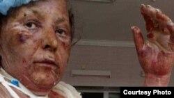 Пострадавшая бабушка. Во время взрыва дома находились лишь она и ее пятилетний внук