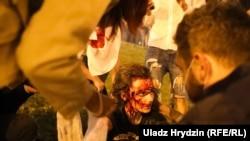 Раненые в Минске