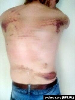 Уладзімер, 31 год, грамадзянін Расеі, зьбіты міліцыяй у Магілёве