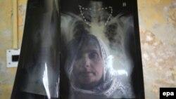 Созмони Ҷаҳонии Беҳдошт мегӯяд, бемории сил соли 2014 тақрибан 2 миллион нафарро куштааст.