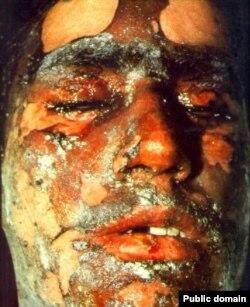 Жертва горчичного газа. Ирано-иракская война