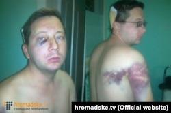 Сергій Нужненко (фото: hromadske.tv)