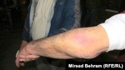Muharem Hindić pokazuje povrede, foto: Mirsad Behram