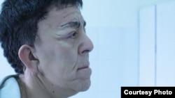 Нуржан Уркешбаев после пластической операции. Фото предоставлено алматинской клиникой «Ниссамед».
