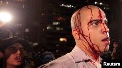 Бразилиянын эң чоң Сан Пауло шаарындагы нааразылык акциясы кезде башка бир демонстрант тарабынан кол салынып, жараат алдым деген манифестант топту калтырып бараткан кез.