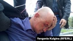ЛГБТ-активиста Александра Ермошкина ударили по голове, Хабаровск, 17 мая 2015