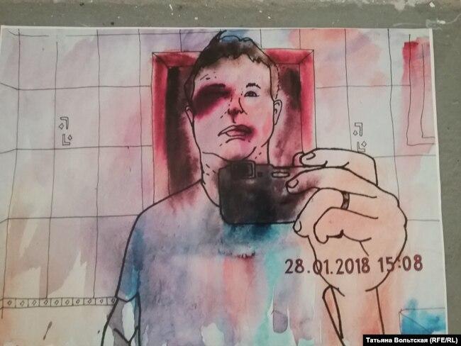 """Рисунок из серии """"Гематомы"""""""