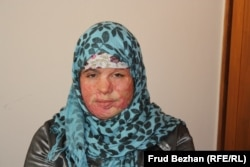 An 18-year-old survivor of domestic abuse who was one of hundreds of Afghan girls and women who found refuge in shelters in the previous decade. (file photo)