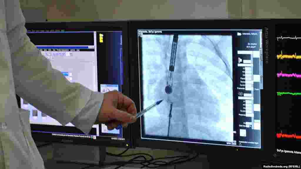 Введення оклюдера і датчиків до аорти. Зображення передається з датчика на екран