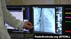 Введення оклюдера і сенсорів до аорти. Зображення передається з сенсора на екран