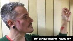 В Одесі побили ЛГБТ-активіста Ігоря Захарченка