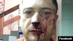 Активист Владимир Лавров после нападения