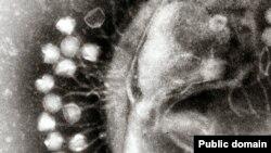 Вирусы атакуют клетку. Съемка электронным микроскопом