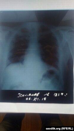 Maqsud Kamolov qovurg'asi rentgen qilingan