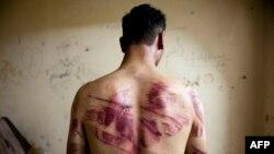 """За последние пять лет """"Международная амнистия"""" сообщила о пытках как минимум в 141 стране"""