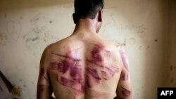 Assad həbsxanasında işgəncələrə məruz qalan məhbuslardan biri