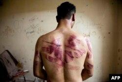 Жертва пыток со стороны правительственных войск, Алеппо, 2013 год
