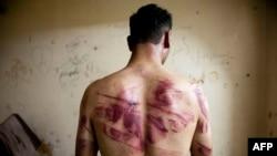 Следы пыток на теле бывшего заключенного сирийской тюрьмы