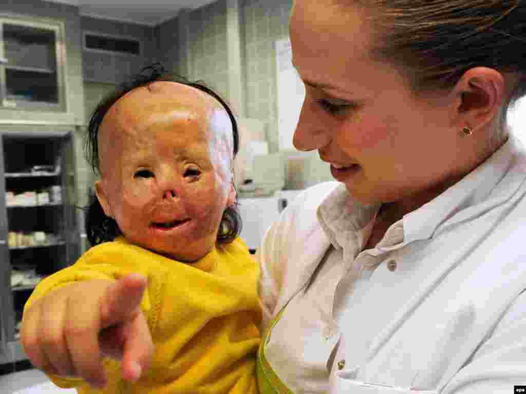 Dvogodišnja djevojčica, Maryam, preživjela je požar sa teškim oštećenjima lica. Poslije liječenja u Njemačkoj, ponovo je u mogućnosti da jede i govori. Foto: Angelika Warmuth / epa