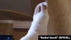 У Саидасрора во время спасения девушки была сломана нога.