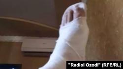 У Саидасрора во время спасения девушки была сломана нога