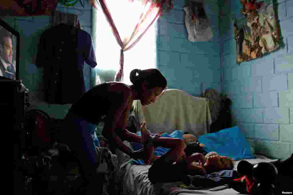 """""""Родить ребенка сейчас – значит обречь его на страдания"""", – уверена одна из пациенток. На фото: Алехандра Хордан одевает своего сына перед тем, как отправиться на операцию"""