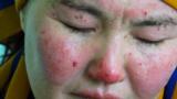 «Пришел пьяным, облил бензином и поджег»: история 33-летней Сатины
