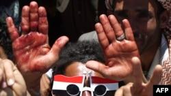 Йемендік шерушілер жаралы жақтастарына көмектескен соң, қолдарындағы қанды көрсетіп тұр.