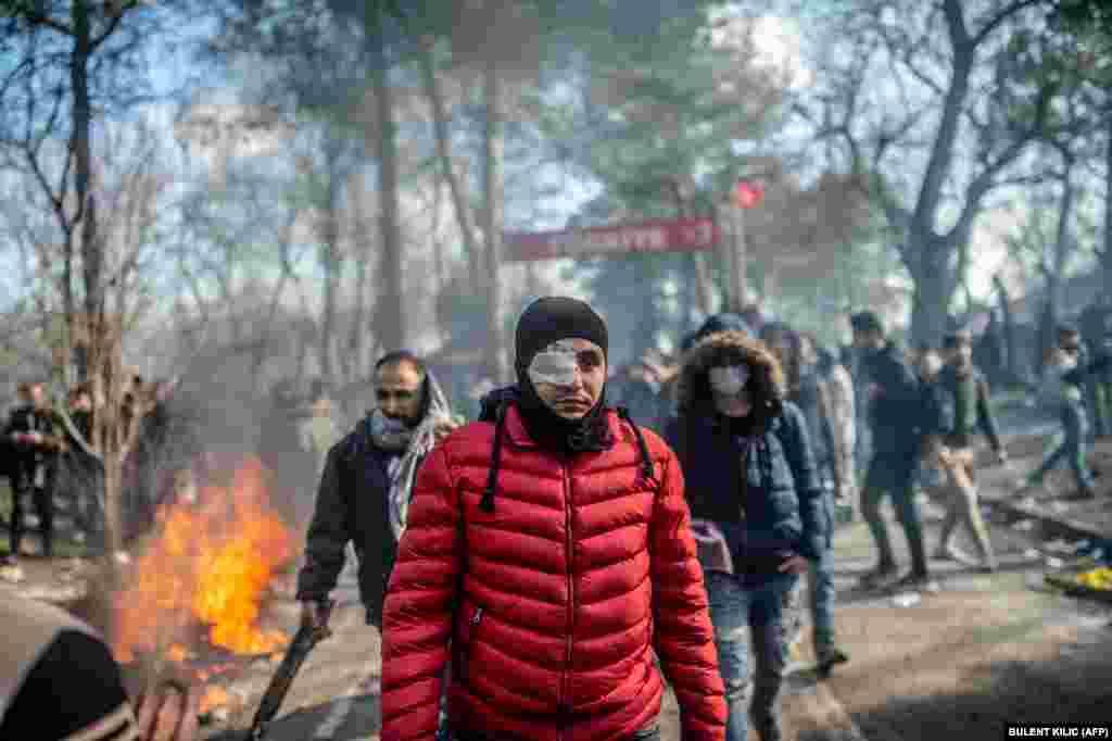 Раненый уходит после столкновения с греческой полицией в буферной зоне рядом с турецким городом Эрдине.