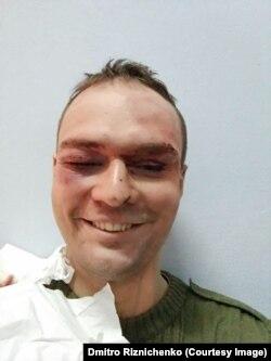 Дмитрий Ризниченко избит после выступления в защиту ЛГБТ, октябрь 2017