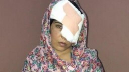 Salema Akhundzada endured 11 hours on poor roads before she and her mother arrived at Kabul's Emergency Hospital for treatment. The doctors there were unable to save her left eye.