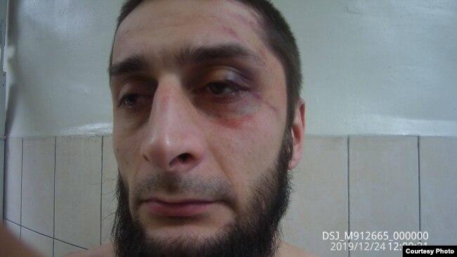 Азамат Казанчев, избитый в Зеленоградском районном суде Москвы