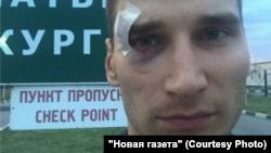 Павло Канигін після побиття сепаратистами