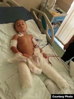 İmran Cəfərzadə yaralanmasından az sonra.