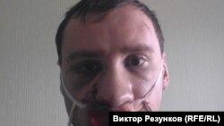Егор Алексеев после избиения