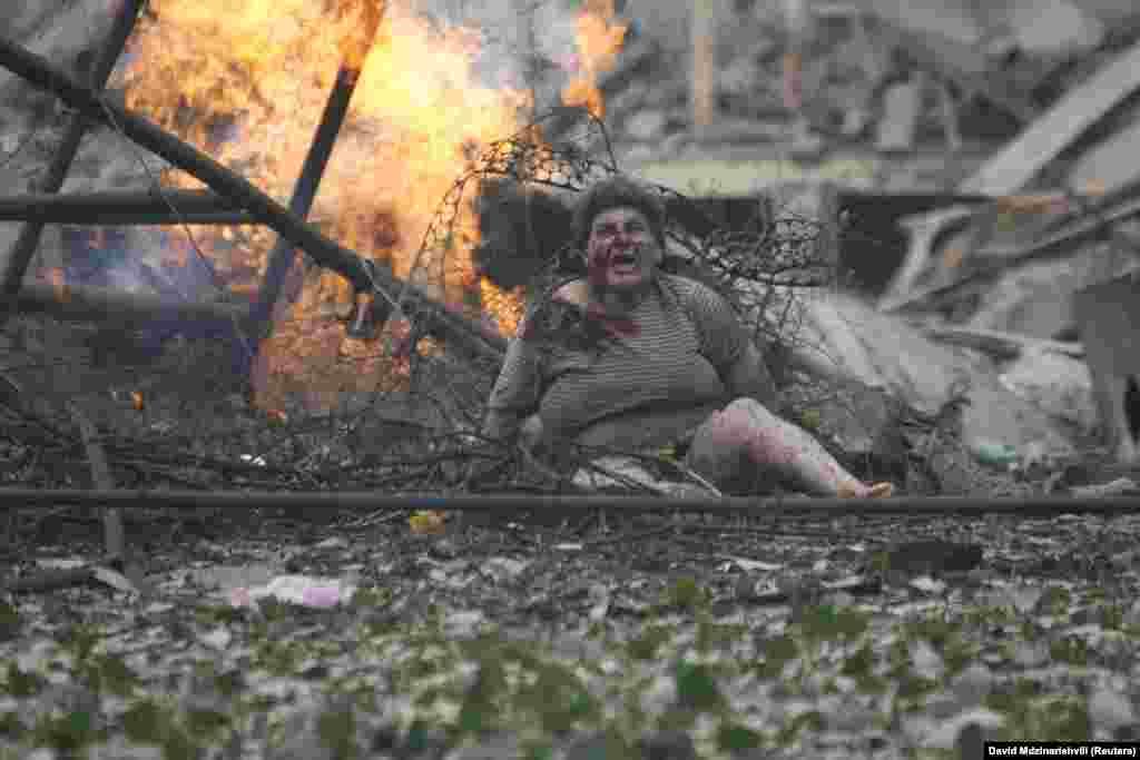 Тбилисиден 80 шақырым жердегі Гори қаласында соғыс барысында жараланған әйел. 9 тамыз 2008 жыл.