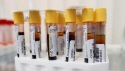 Testet e antitrupave synojnë të tregojnë një pamje më të gjerë të pandemisë