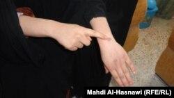 إمرأة عراقية تعرضت للضرب
