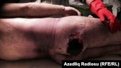 Elşad Babayevin meyidinin morqda çəkilmiş fotosu