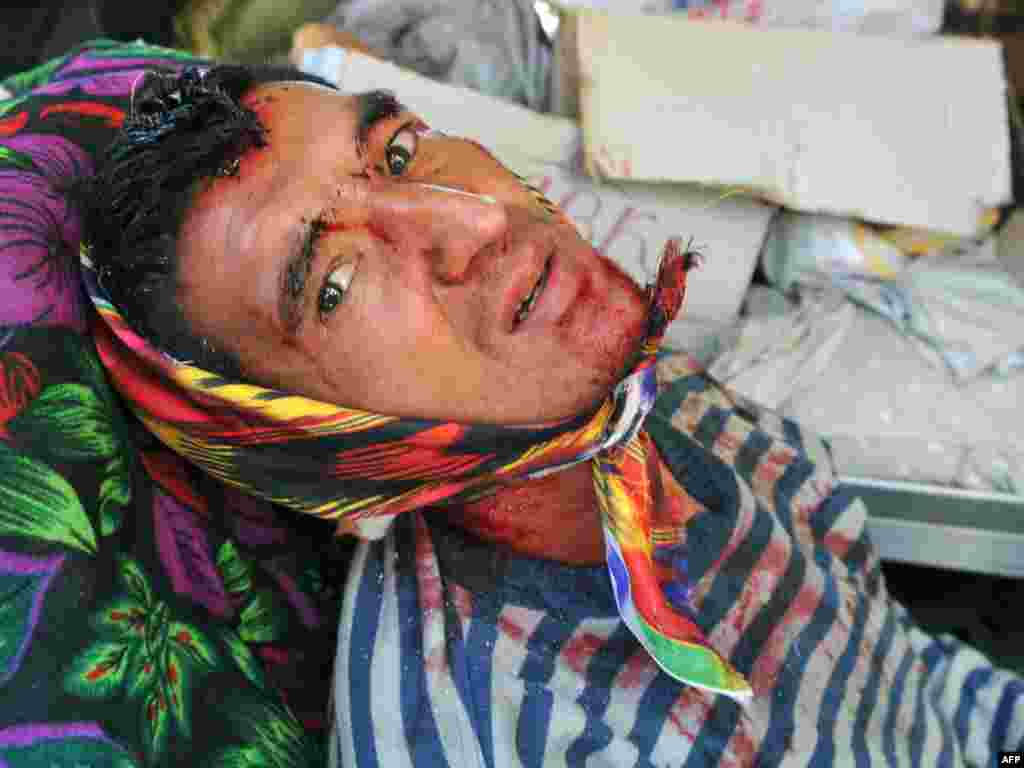 A man injured in the ethnic violence rests in an Uzbek neighborhood in Osh on June 14.