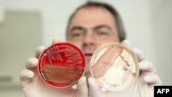 Профессор Гельмут Фикеншер: сальмонелланын бактериясы антибиотиктерди тоотпой калган, Киель, Германия, 01.06.2011.