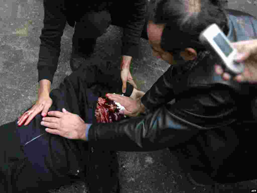 Iranian protesters try to staunch the bleeding from a man reportedly shot. (AFP)