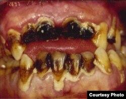 Зубы мет-наркомана. Зрелище не для слабонервных