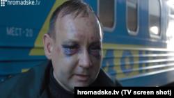 Шахцёр Аляксандар Воўк пасьля сэпаратысцкага палону
