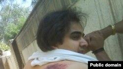 پيمان عارف ۷۴ ضربه شلاق خورد