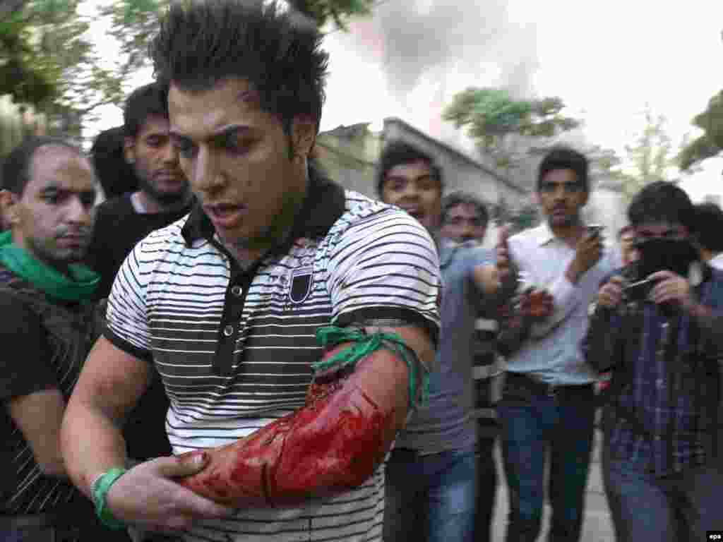 Iranian media reported that seven people were killed in the clashes. This demonstrator suffered a gunshot wound.