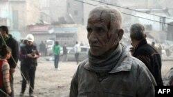 Алеппода шабуылдардан жараланған тұрғындардың бірі. Сирия, 29 қаңтар 2014 жыл.