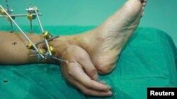 دست این فرد در حادثهای از مچ قطع شده و شدت جراحات به حدی بود که امکان پیوند فوری آن به محل اصلی وجود نداشت.